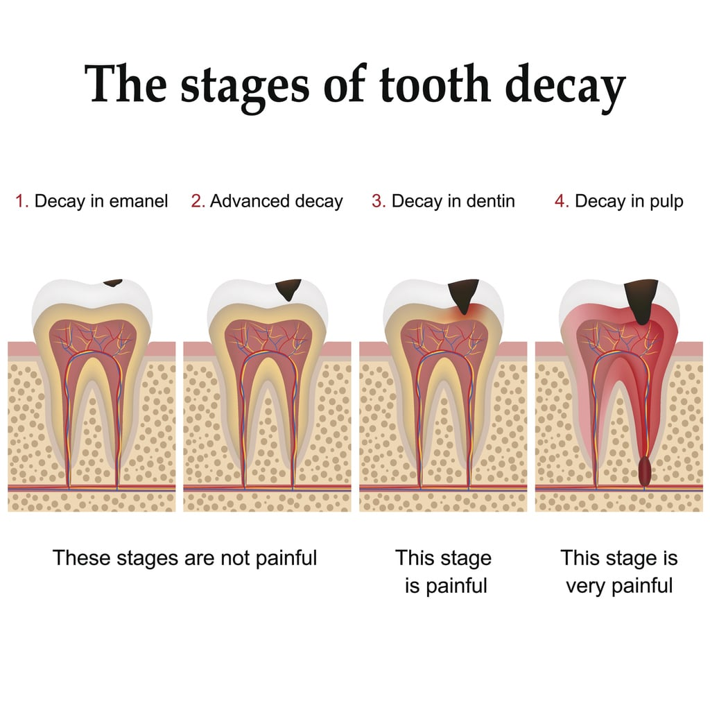 Tooth Decay : Fillings