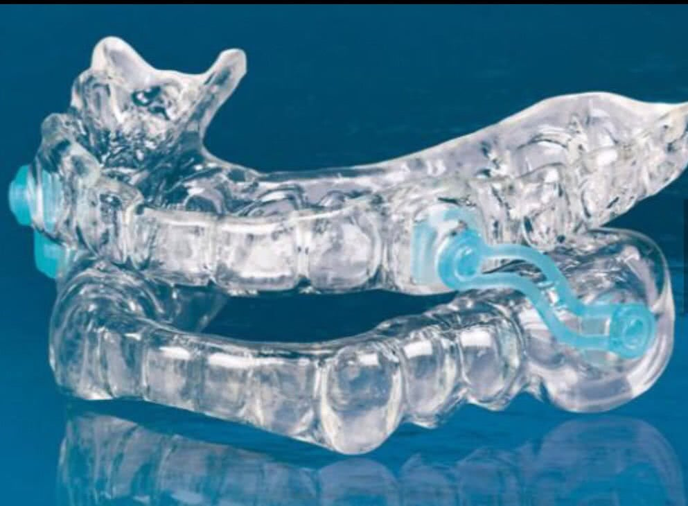 Oral Appliance 2